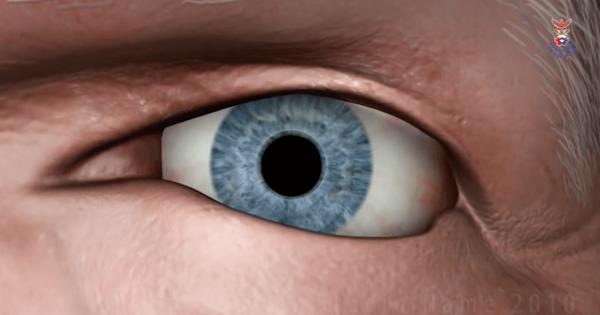 ดูแลผ่าตัดตา