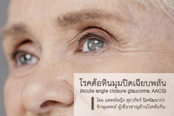 โรคต้อหินมุมปิดเฉียบพลัน(Acute angle closure glaucoma; AACG)